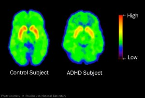 brookhaven_brain_scan_adhd_child
